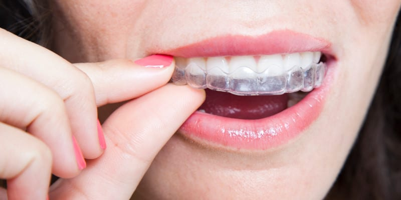Invisalign in Clayton, North Carolina