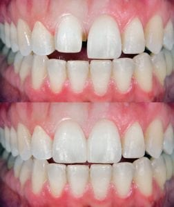Veneers in Clayton, North Carolina