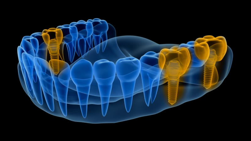 dental implants provide you with the closest experience to natural teeth