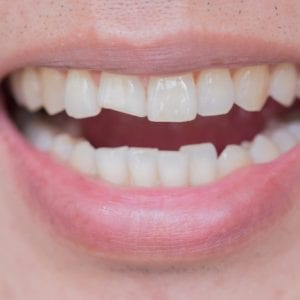 4 Common Dental Problems Your Dentist Can Resolve