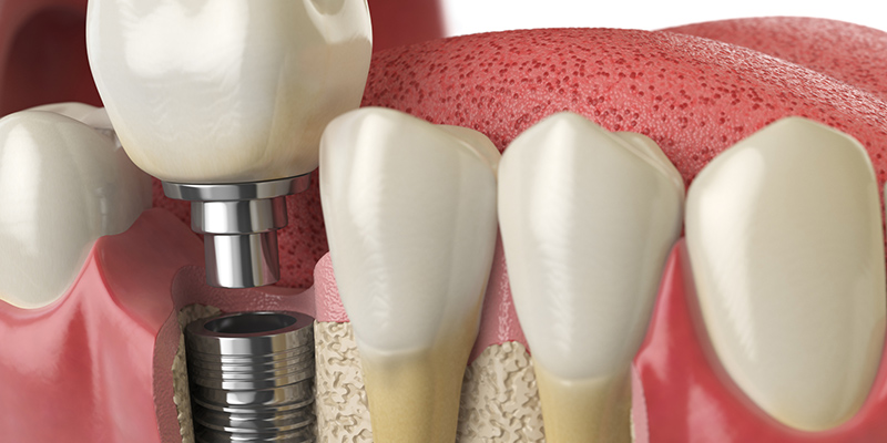 3 Benefits of Dental Implants that Can't be Ignored
