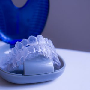 A Few Things You Need to Know About Invisalign