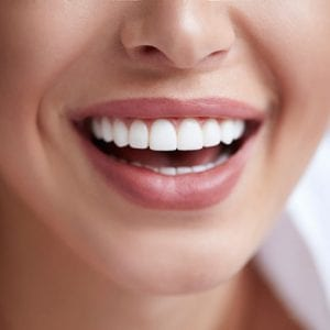 Straighten Your Smile with Invisalign!